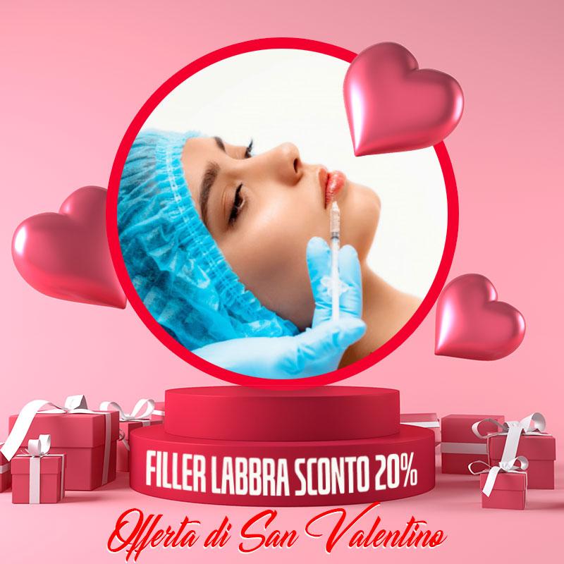 Offerta di San Valentino: Filler Labbra