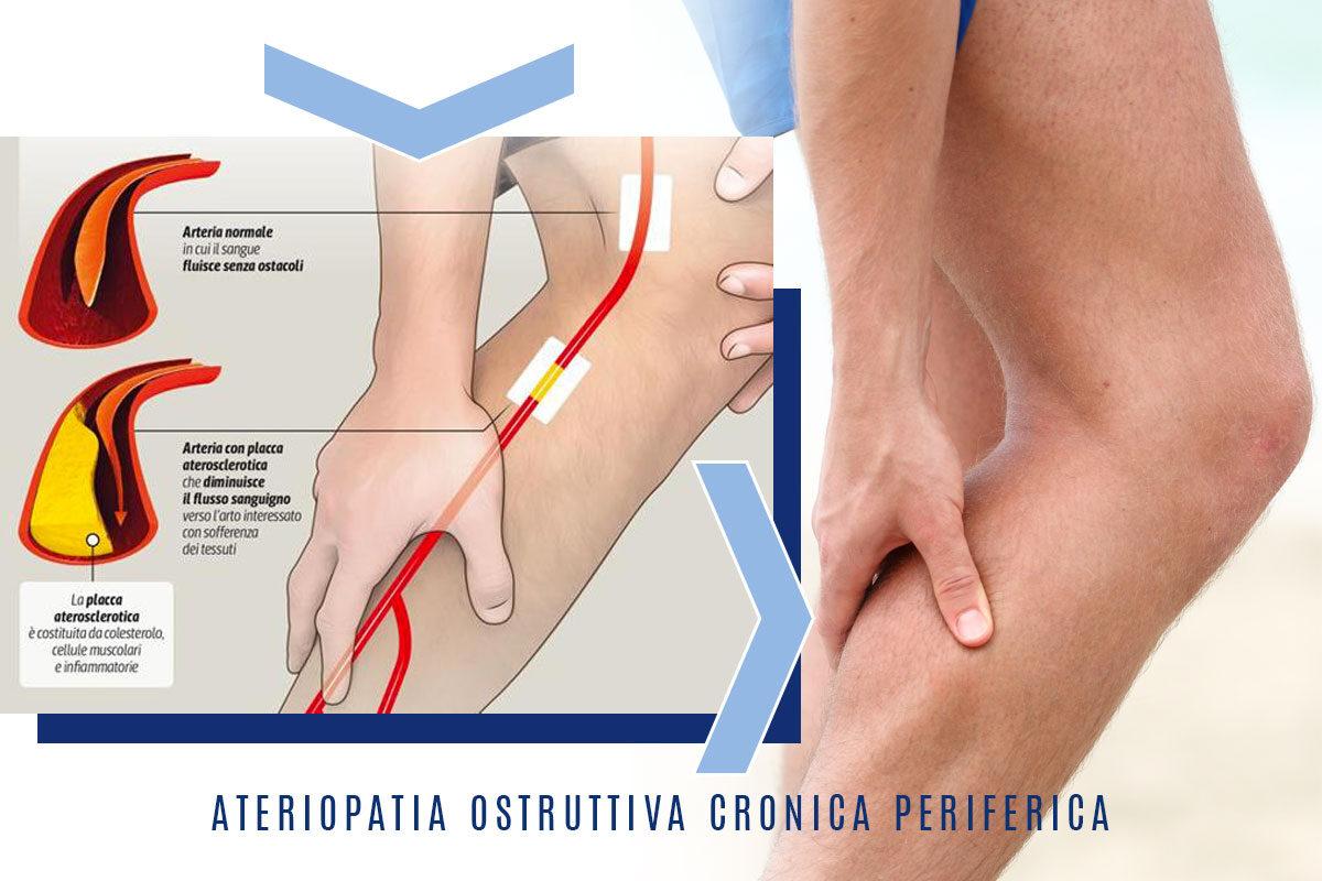Arteriopatia cronica ostruttiva periferica